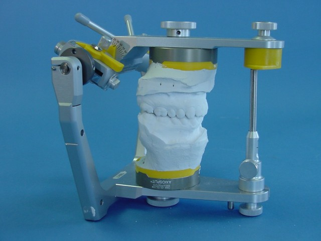 How to Get the Most Out of Analog Articulators