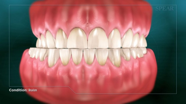 Spear Releases New Bruxism Patient Education Video