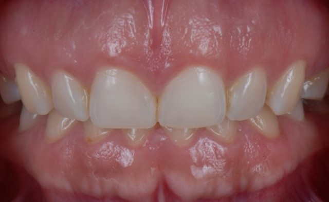 A Step-by-Step Guide to Virtual Crown Lengthening