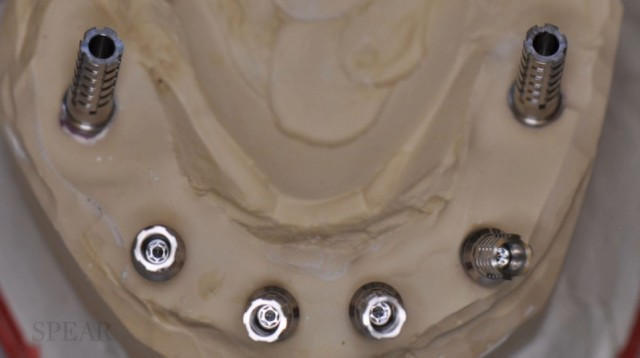 New Spear Online Course: Edentulous Arches and Immediate Provisional Restorations
