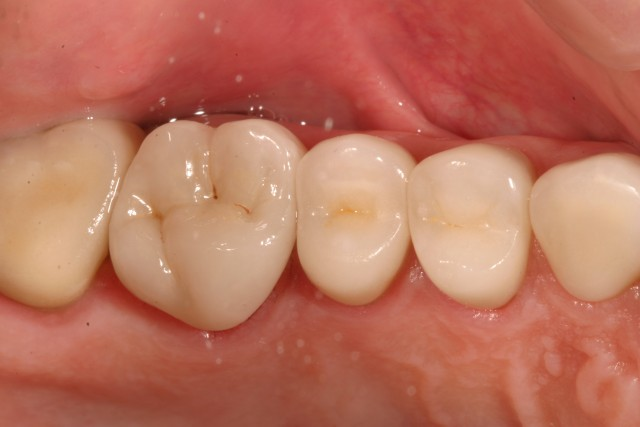 Recommendations for Monolithic Translucent Zirconia Restorations