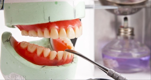 New Spear Online Course: Full-Arch Implant-Supported Fixed Dental Restorations