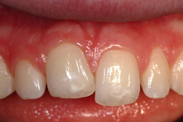 Spear Releases 'Managing Ankylosed Teeth' Study Club Module