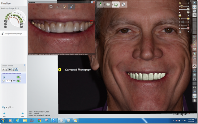 What Digital Smile Design Did for Me