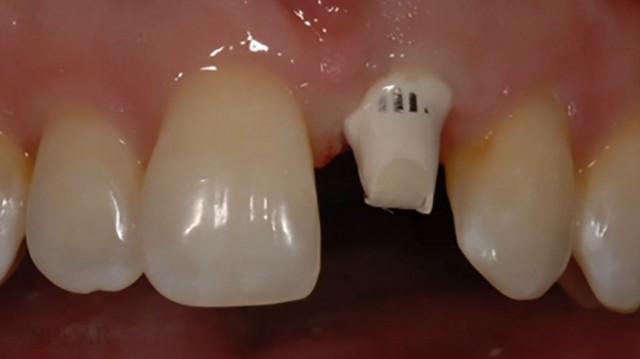 New Spear Online Course: Single Implant in the Esthetic Zone