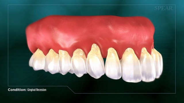 Gingival Recession Explored in New Patient Education Video