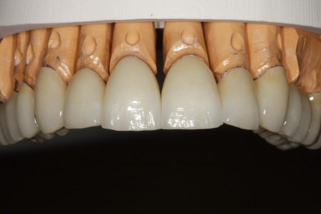 Power of the Intraoral Mock-Up: 7 Steps to Case Acceptance
