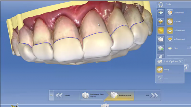 Going Digital With the Anterior Bite Plane