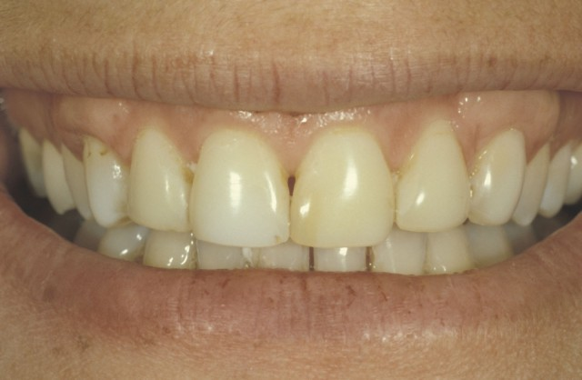 Glass Ceramic Bonding: 3 Commonly Asked Questions