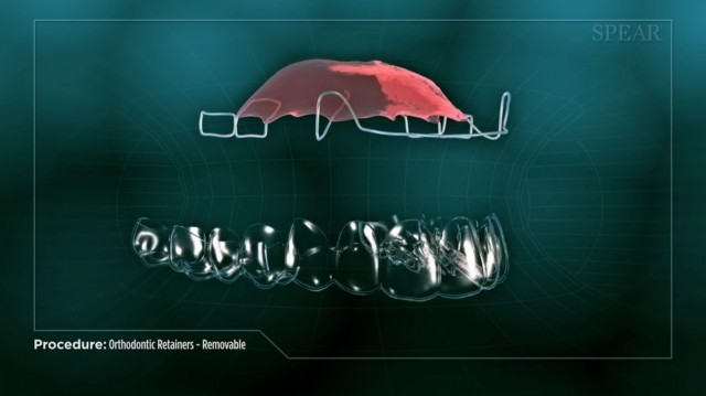 Spear Releases Patient Education Video on Removable Orthodontic Retainers