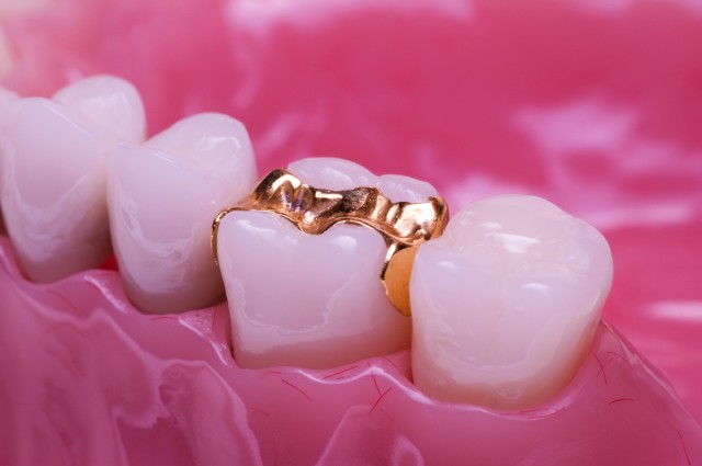 Gold, Ceramic and Composite: A Restorative Dental Material Discussion