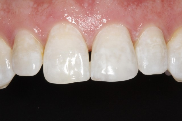 Four Products to Immediately Improve Your Composite Restorations