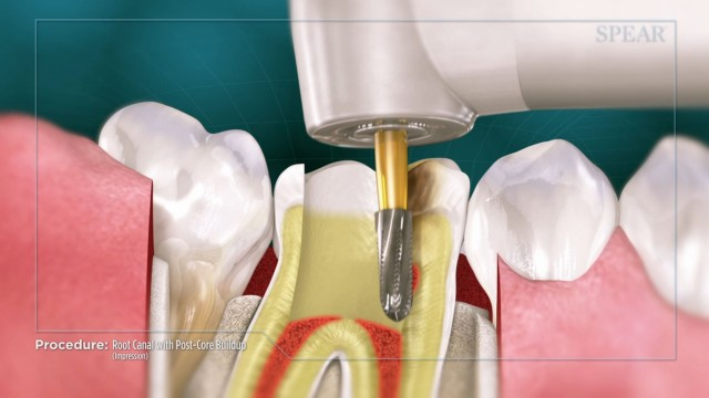 Spear Releases Two Root Canal Patient Education Videos