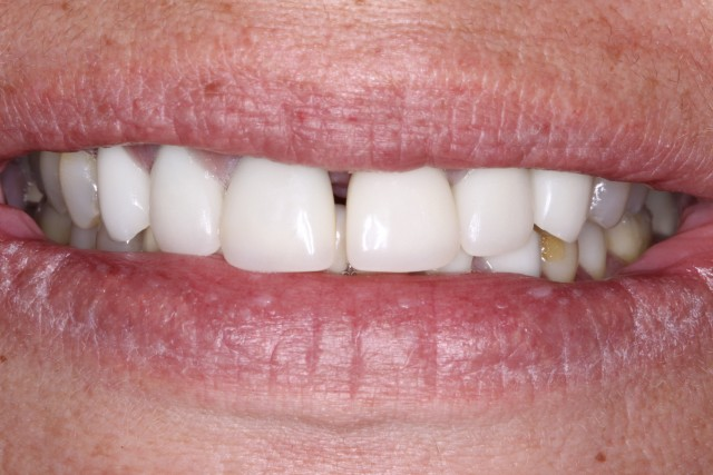 How to Close a Diastema