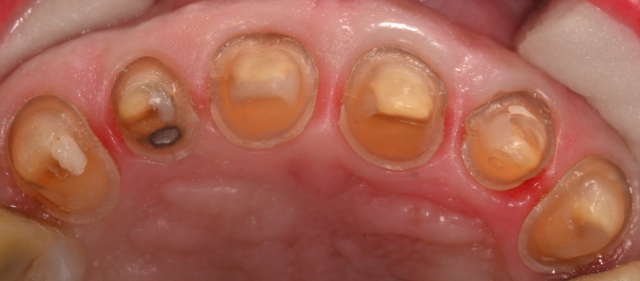 Want Better Dental Restorations? Put Down Your Handpiece