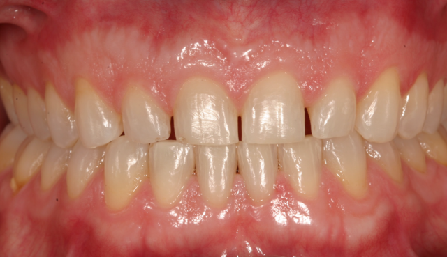 A Simplified Process for Bonding e.max and Other Glass Ceramic Restorations