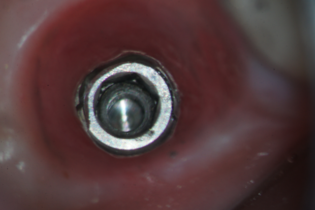 Dealing with a Damaged Implant