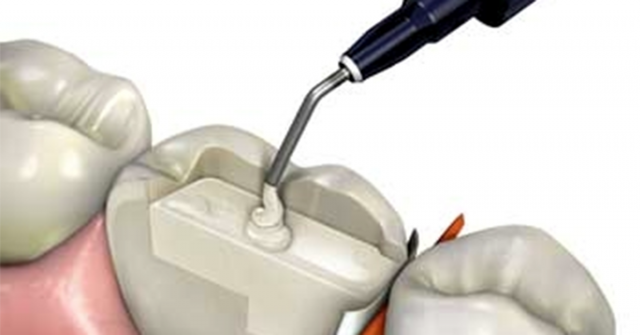 Dental Composites: Types and Recommendations