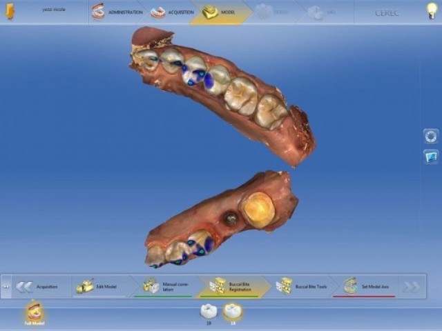 Implant Tissue Development in the Posterior with Digital Dentistry