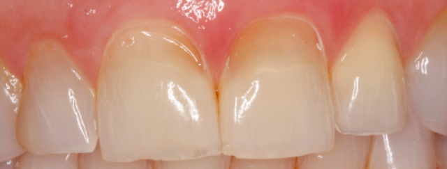 An Uncommon Pattern of Dental Erosion