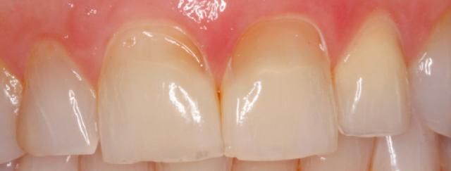 An Uncommon Pattern of Dental Erosion