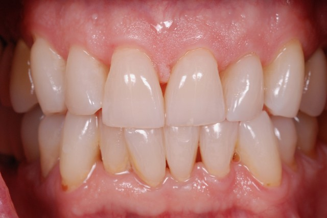 Veneer Preparations: When to Break Interproximal Contact
