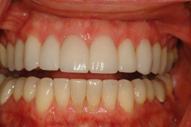 Communicating Predictable Incisal Edge Position