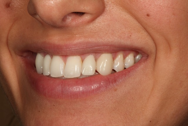 Alter the Esthetic Appearance of Incisal Thirds in 6 Steps
