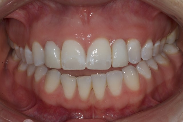 Airway Prosthodontics: Taking Dentistry Beyond Sleep Apnea and Advancement Appliances