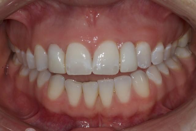 Airway Prosthodontics: Taking Dentistry Beyond Sleep Apnea and Advancement Appliances