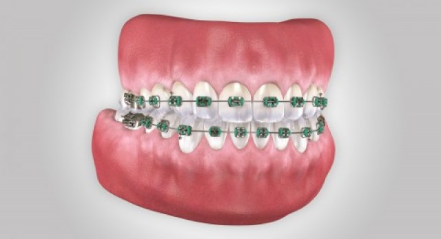 Spear Releases Orthodontic-Restorative Connection Curriculum
