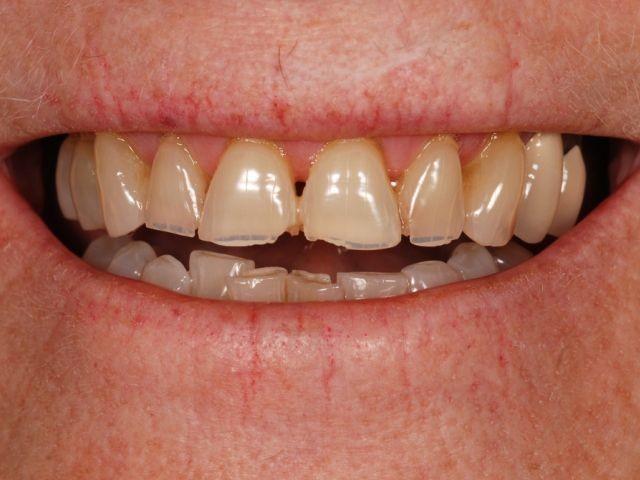 Endodontics and Treatment Planning: Two New Dental Study Club Modules