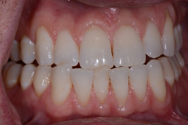 Five Functional Tips for Any Restorative Dentist