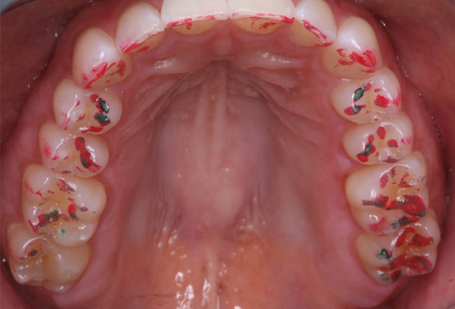 Occlusal (Bite) Disease