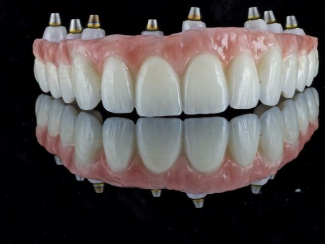 Spear Releases Full Arch Zirconia Fixed Prosthesis Study Club Module