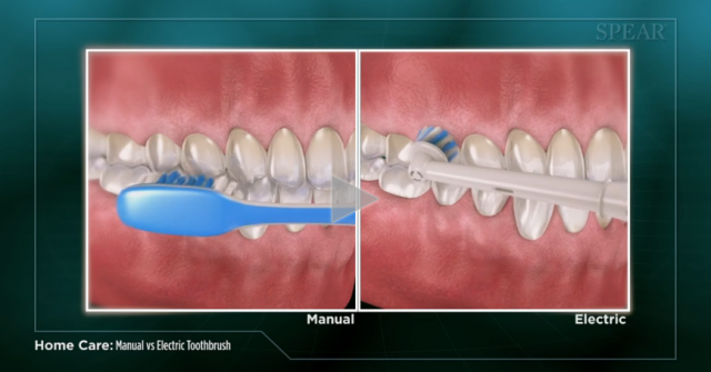 Spear Releases Patient Education Videos on Toothbrushes and Fluoride