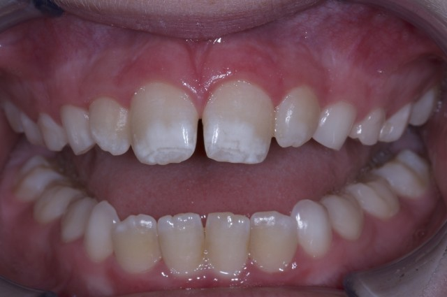 Orthodontics: A Link To Health and Wellness?