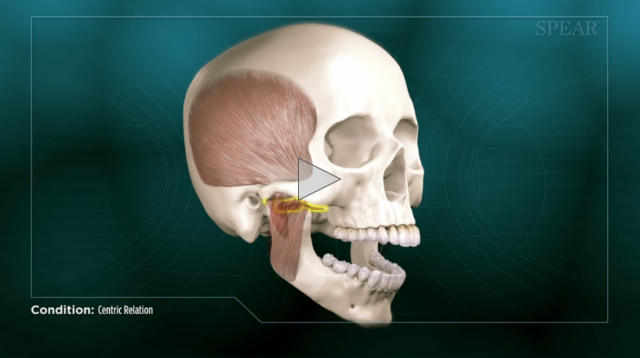 Spear Releases Patient Education Videos On Equilibration, Centric Relation and Occlusion