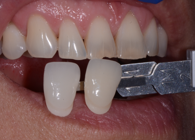 4 Vital Images For Your Dental Lab