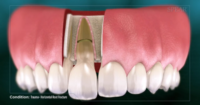 Spear Releases Patient Education Videos On Tumors, Chipped Teeth and Root Fractures