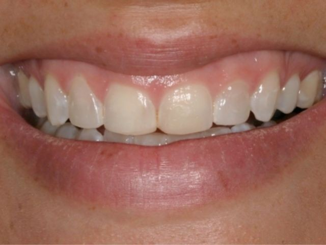Spear Releases 3 New Study Club Modules On Excessive Gingival Display
