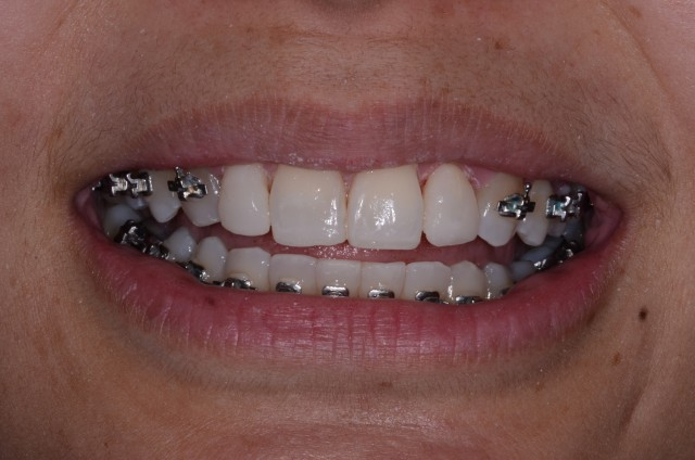 Resizing Teeth Mid-Ortho