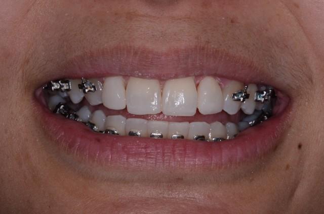 Resizing Teeth Mid-Ortho