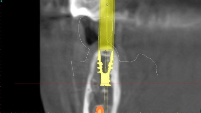Using Digital Guides to Replace a Missing Tooth with an Implant