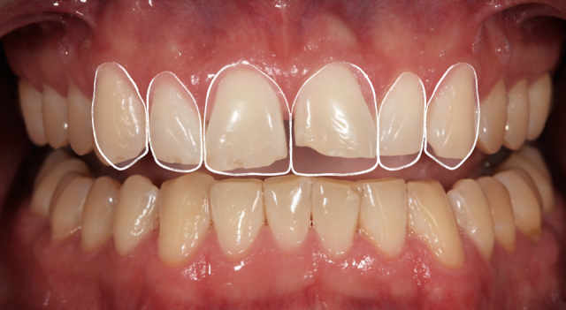 When to Complete a Diagnostic Wax-Up