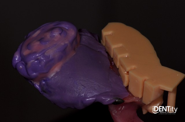 Hybrid Digital/Analog Technique for Maxillofacial Prosthodontics