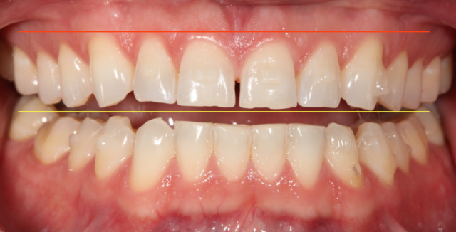 Diagnostic Wax-Up Fabrication: Pre-Restorative Treatment and Ortho