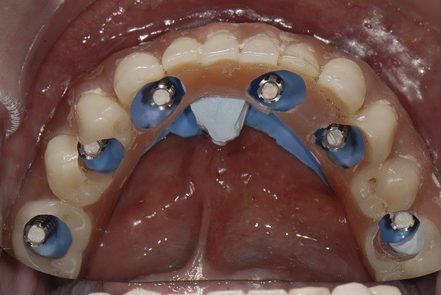Conversion Prosthesis For an Implant-Supported Fixed Dental Prosthesis