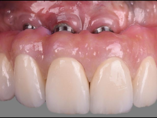 New Study Club Module Discusses Upgrading an Implant-Supported Overdenture to a Fixed Design