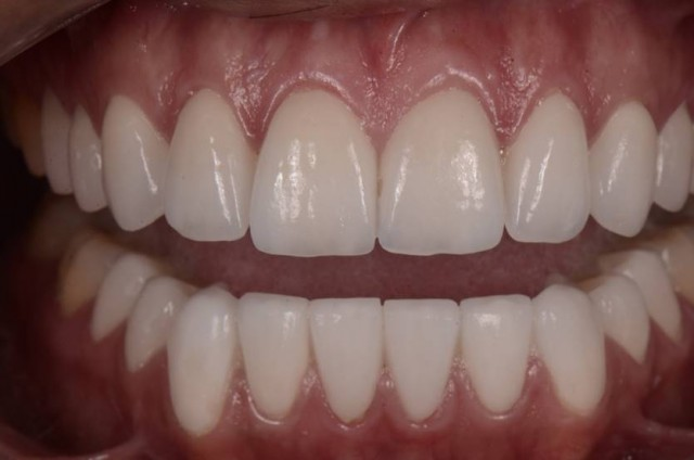Dental CSI: A Miscommunication Journey With a Patient With an Eating Disorder